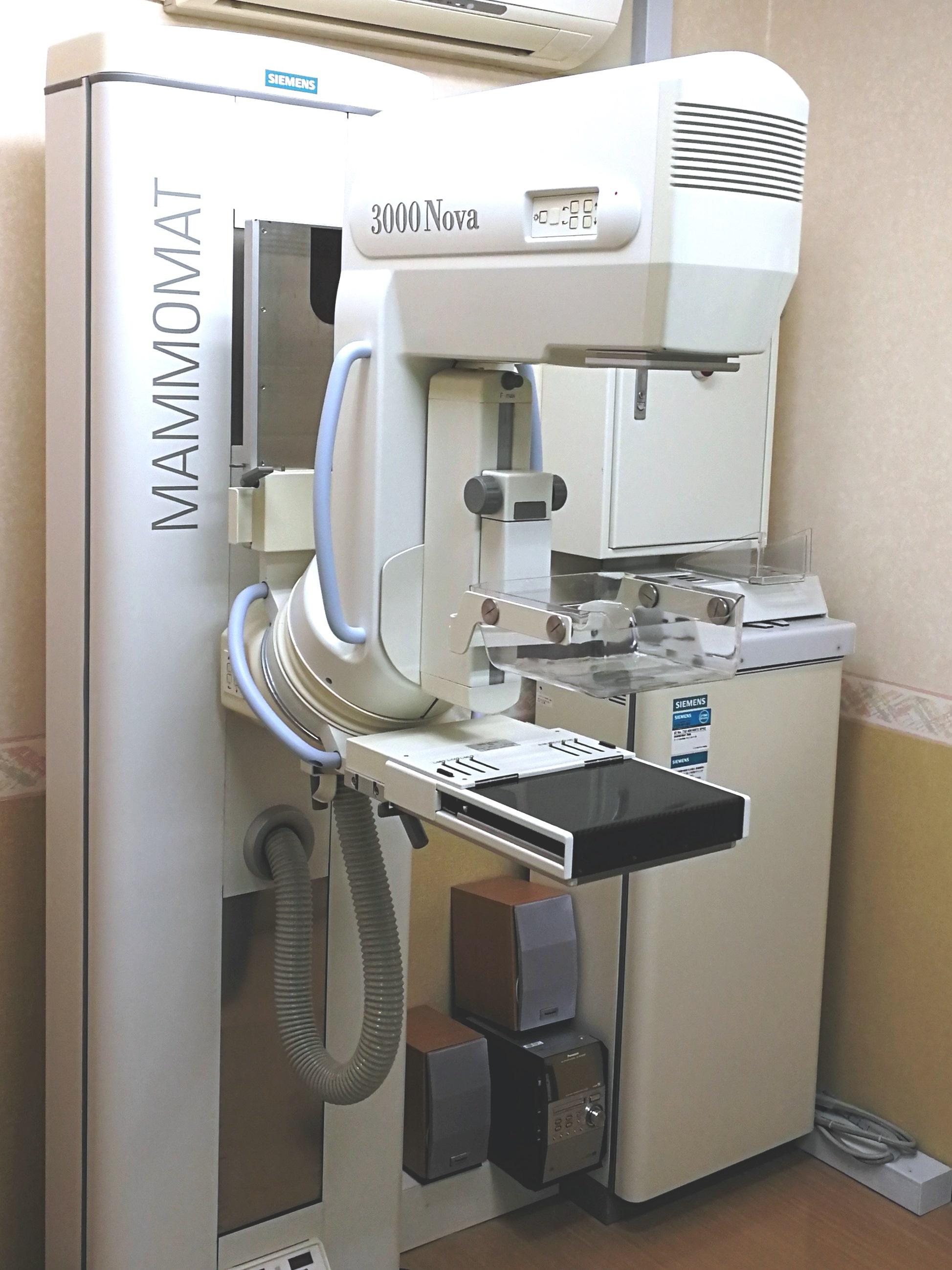 マンモグラフィ検診